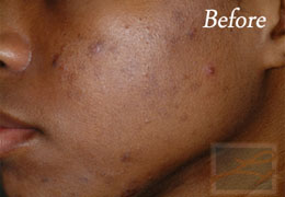 SilkPeel Dermal Infusion New Orleans - Case 5, Before