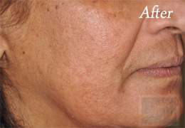 SilkPeel Dermal Infusion New Orleans - Case 6, After