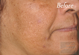 SilkPeel Dermal Infusion New Orleans - Case 6, Before