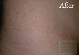 SilkPeel Dermal Infusion New Orleans - Case 7, After