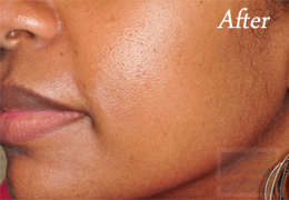 SilkPeel Dermal Infusion New Orleans - Case 8, After