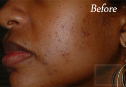 SilkPeel Dermal Infusion New Orleans - Case 8, Before