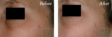 Silkpeel - Before after gallery image 11