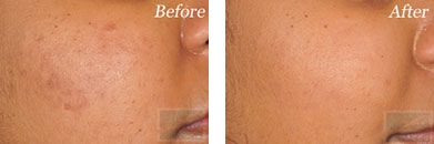 Silkpeel - Before after gallery image 4