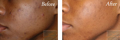 Silkpeel - Before after gallery image 9