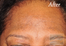 Skin Care New Orleans - Case 2, After
