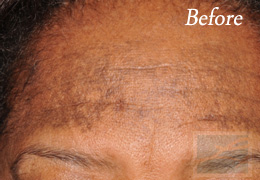 Skin Care New Orleans - Case 2, Before