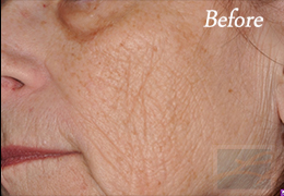 Skin Care New Orleans - Case 3, Before