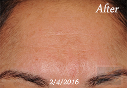 Skin Care New Orleans - Case 5, After