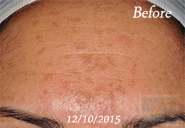 Skin Care New Orleans - Case 5, Before