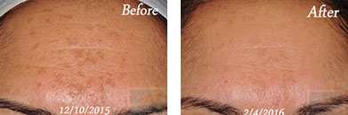 Skin care - Before after gallery image 8