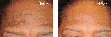 Skin care - Before after gallery image 10
