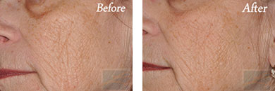Skin care - Before after gallery image 11