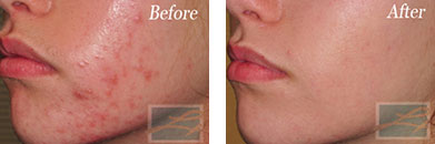 Skin care - Before after gallery image 6