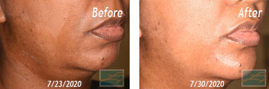 Skin of Color Treatment - Before after Result at New Orleans, LA image 1