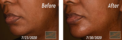 Skin of Color Treatment - Before after Result at New Orleans, LA image 2