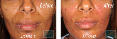 Skin of Color Treatment - Before after Result at New Orleans, LA image 3