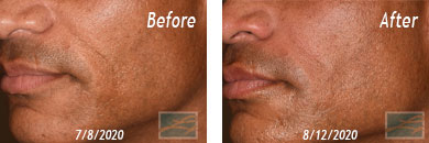 Skin of Color Treatment - Before after Result at New Orleans, LA image 4