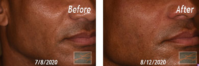 Skin of Color Treatment - Before after Result at New Orleans, LA image 5