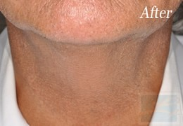 Dermatologist New Orleans - Skin Tightening, After