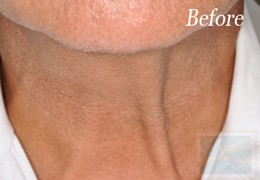 Dermatologist New Orleans - Skin Tightening, Before