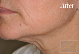 Skin Tightening New Orleans - Case 10, After