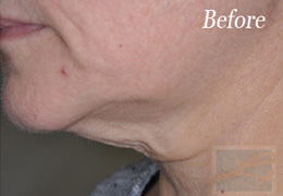 Skin Tightening New Orleans - Case 10, Before