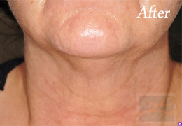 Skin Tightening New Orleans - Case 15, After