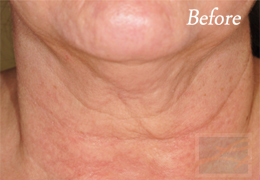 Skin Tightening New Orleans - Case 15, Before