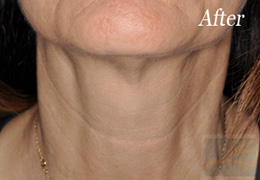 Skin Tightening New Orleans - Case 2, After