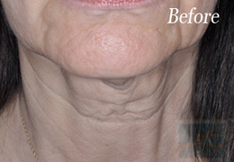 Skin Tightening New Orleans - Case 2, Before
