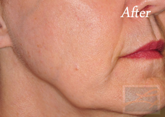 Skin Tightening New Orleans - Case 20, After