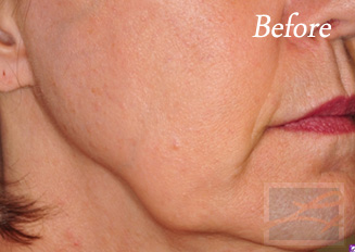Skin Tightening New Orleans - Case 20, Before