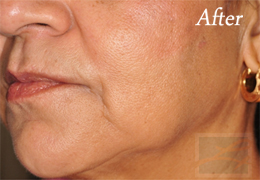 Skin Tightening New Orleans - Case 21, After