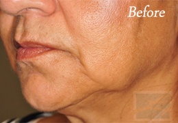 Skin Tightening New Orleans - Case 21, Before