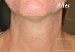 Skin Tightening New Orleans - Case 22, After