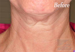 Skin Tightening New Orleans - Case 22, Before