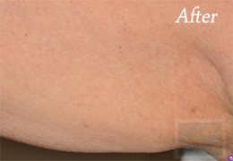 Skin Tightening New Orleans - Case 23, After