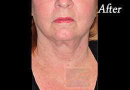 Skin Tightening New Orleans - Case 27, After