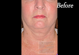 Skin Tightening New Orleans - Case 27, Before