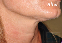 Skin Tightening New Orleans - Case 29, After