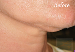Skin Tightening New Orleans - Case 29, Before