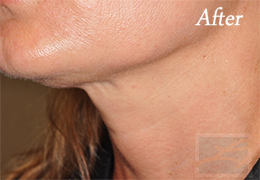 Skin Tightening New Orleans - Case 30, After