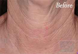 Skin Tightening New Orleans - Case 31, Before