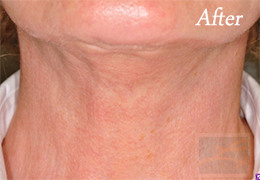 Skin Tightening New Orleans - Case 33, After