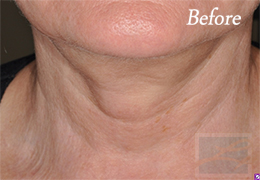 Skin Tightening New Orleans - Case 33, Before