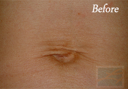 Skin Tightening New Orleans - Case 34, Before