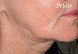 Skin Tightening New Orleans - Case 35, Before