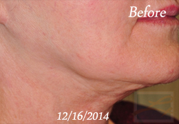 Skin Tightening New Orleans - Case 36, Before