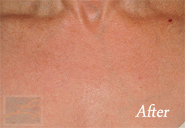 Skin Tightening New Orleans - Case 38, After